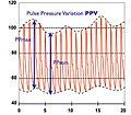 Pulse pressure variation.jpg