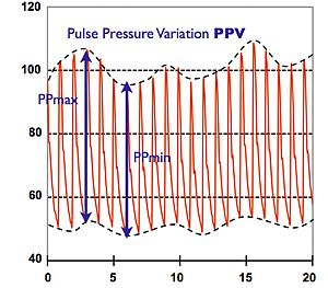 Continuous noninvasive arterial pressure - Respiratory changes of blood pressure – the change of pulse pressure maximum (PPmax) to minimum (PPmin) is called PPV (in %).