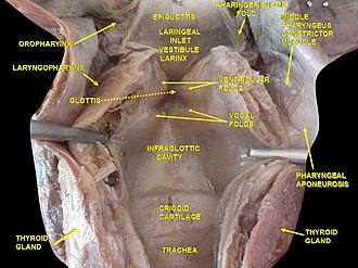 Laryngeal vestibule - Image: Slide 2kuku