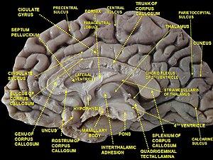 Septum pellucidum - Image: Slide 3ZEN