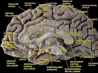 Cingulate sulcus - Image: Slide 3ZEN