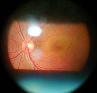 Ophthalmology | Revolvy