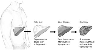 Non-alcoholic fatty liver disease Excessive fat build-up in the liver not caused by alcohol use