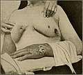 The breast- its anomalies, its diseases, and their treatment (1917) (14754659084).jpg