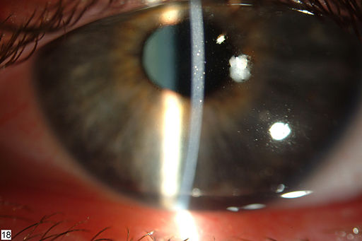 Thygeson's superficial punctate keratitis