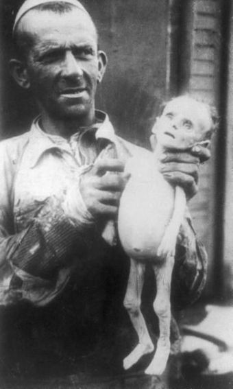 Man showing corpse of a starved infant in the Warsaw ghetto, 1941 Warsaw ghetto - infant corpse.jpg