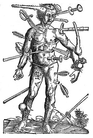 Wound-man, 16th Century Wellcome L0010200.jpg
