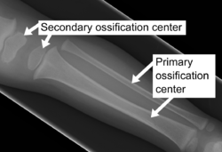 X-ray of ossification centers.png