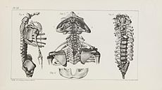 A Descriptive Catalog of the Monstrosities in the Cabinet of the Boston Society for Medical Improvement, Plate III.jpg