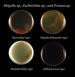 EMB Agar Selective or Differential http://en.wikipedia.org/wiki/Growth_medium