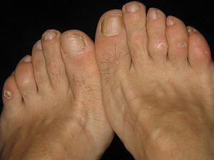 English: Painful corns at both feet of a 51-ye...