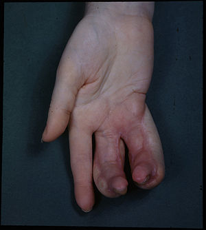 Bioremediation of radioactive waste - Deformity of hand due to an X-ray burn.