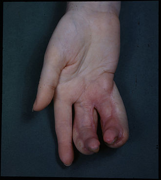 Deformity - Female hand showing deformity due to x-ray burns. The inflammation is due to excessive radiation, which occurs when x-ray machines are unshielded.