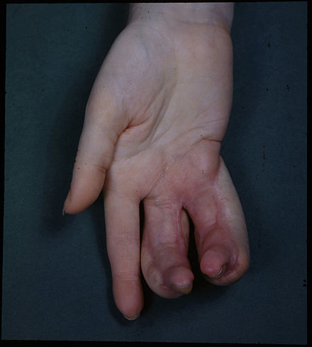 Deformity of hand due to an X-ray burn. These burns are accidents. X-rays were not shielded when they were first discovered and used, and people received radiation burns. Deformity of Hand due to X-ray burns.jpg