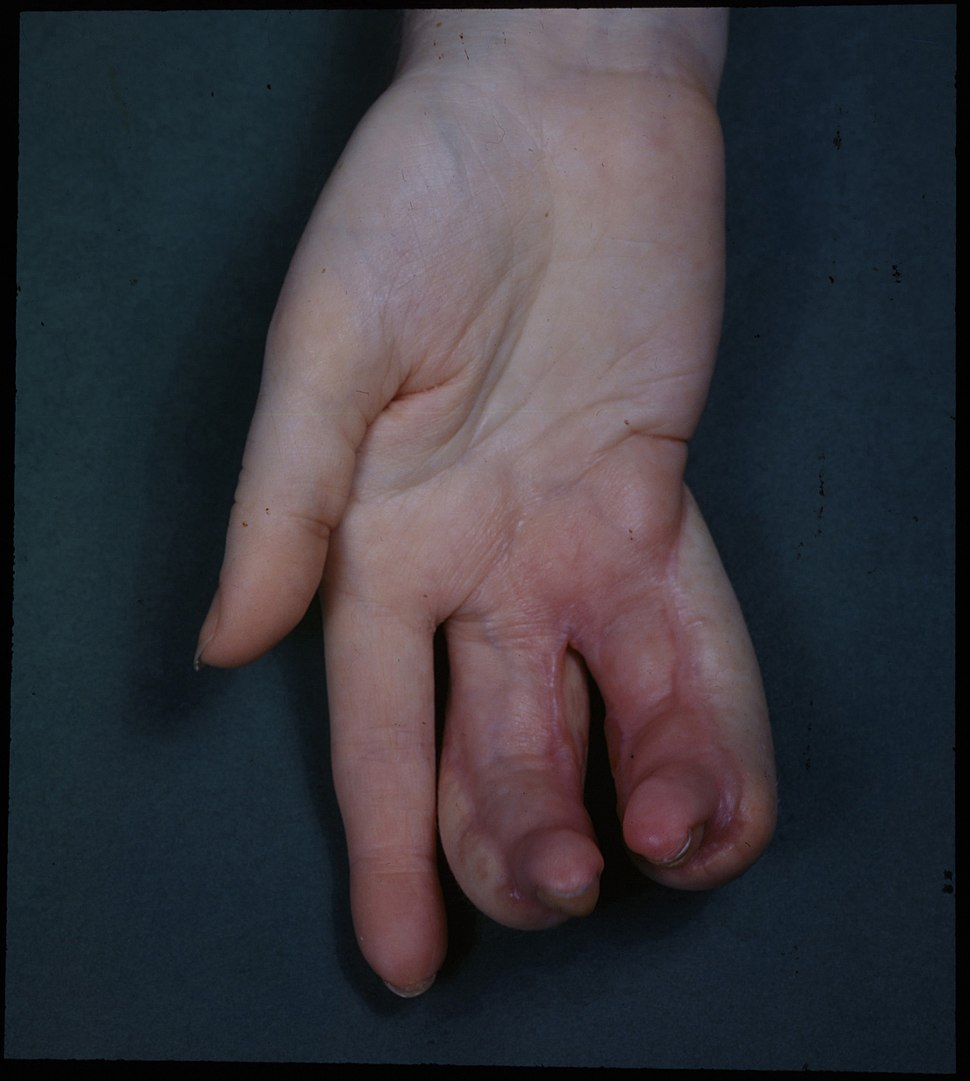 Deformity of Hand due to X-ray burns