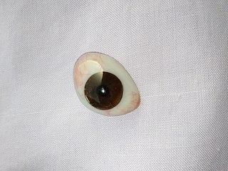 Ocular prosthesis type of craniofacial prosthesis