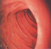 Portal:Medicine/Selected picture archive - Wikipedia