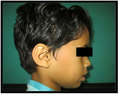 LADD syndrome presence of cup-shaped ear and prominent parietal aspect of head.png