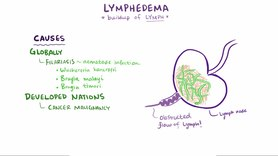 Archivo:Lymphedema video.webm