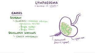 File:Lymphedema video.webm
