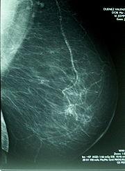 Mamograf�a con lesi�n sospechosa grado IV
