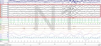 Non-rapid eye movement sleep - Stage N1 Sleep. EEG highlighted by red box.