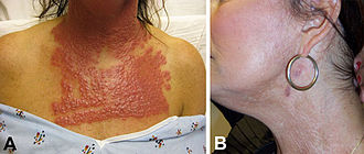 Nontuberculous mycobacteria - A) Neck and chest of a 53-year-old woman 14 days after fractionated CO2 laser resurfacing, showing Nontuberculous Mycobacterial infection B) Neck of the patient after 5 months of multidrug therapy and pulsed dye laser treatment.