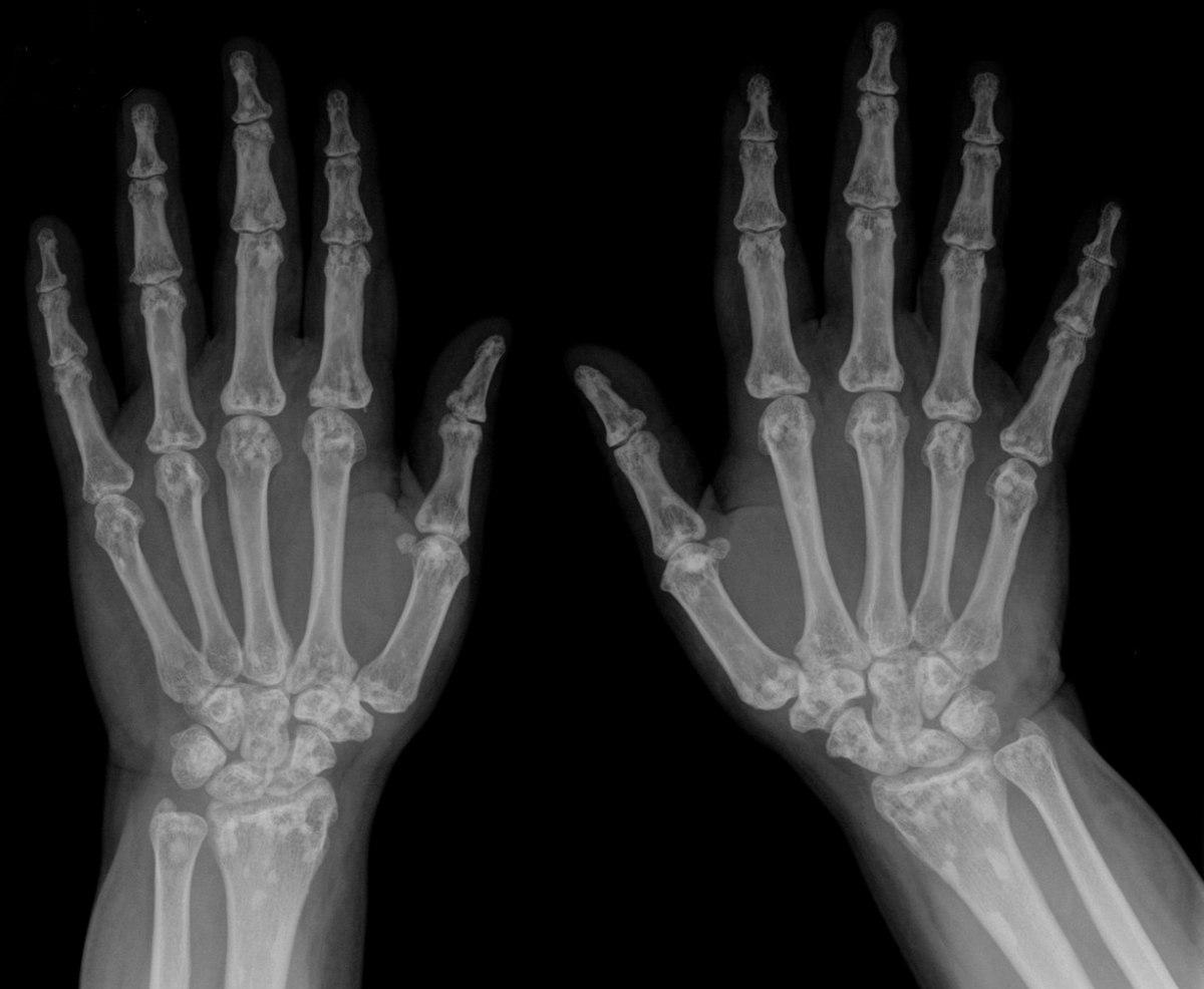 Osteopoikilosis - Wikipedia
