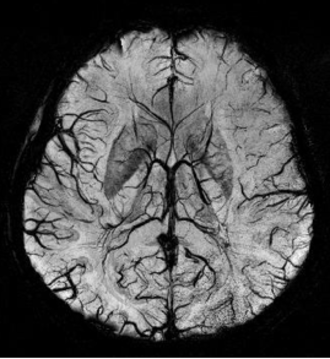Susceptibility weighted imaging - SWI Image acquired at 4 Tesla showing the veins in the brain.