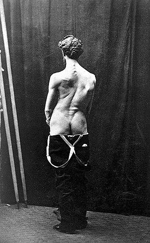 """Sayre """"Spinal disease..."""", 1877; spinal deformity Wellcome L0014463.jpg"""