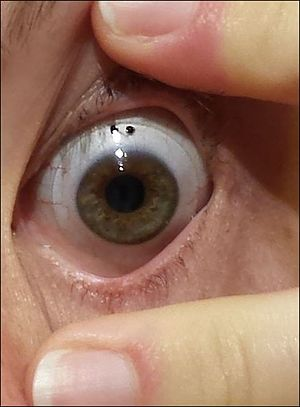 Scleral lens - Scleral lens, with visible outer edge resting on the sclera of a patient with chronic severe dry eye syndrome.