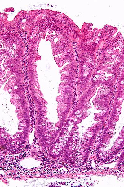 File:Sessile serrated adenoma 2 high mag.jpg