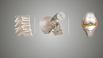 Joint - Types of joints based upon their structure (L to R): Cartilaginous joint, Fibrous joint, and Synovial joint.