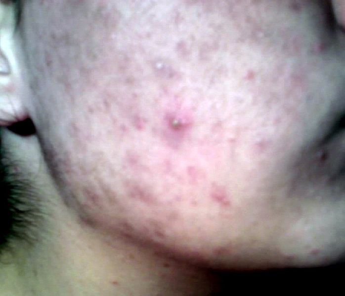 File:Teenager-with-acne.jpg