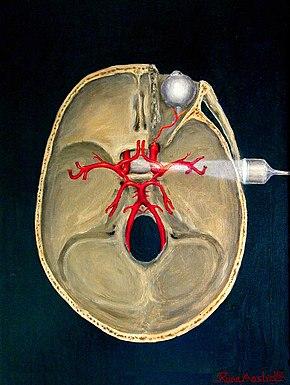 Transcranial Doppler Wikipedia