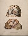 Two sections of diseased brain. Coloured aquatint by W. Say Wellcome V0009764.jpg