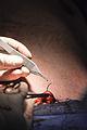 Vishal Kapoor MD TummyTuck Suture.jpg