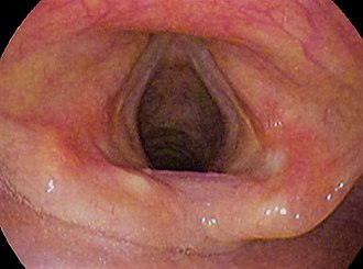 Phonation - Vocal folds (open)