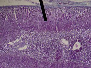 Zona fasciculata - adrenal gland (zona fasciculata layer).