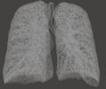 Arbor bronchialis.PNG