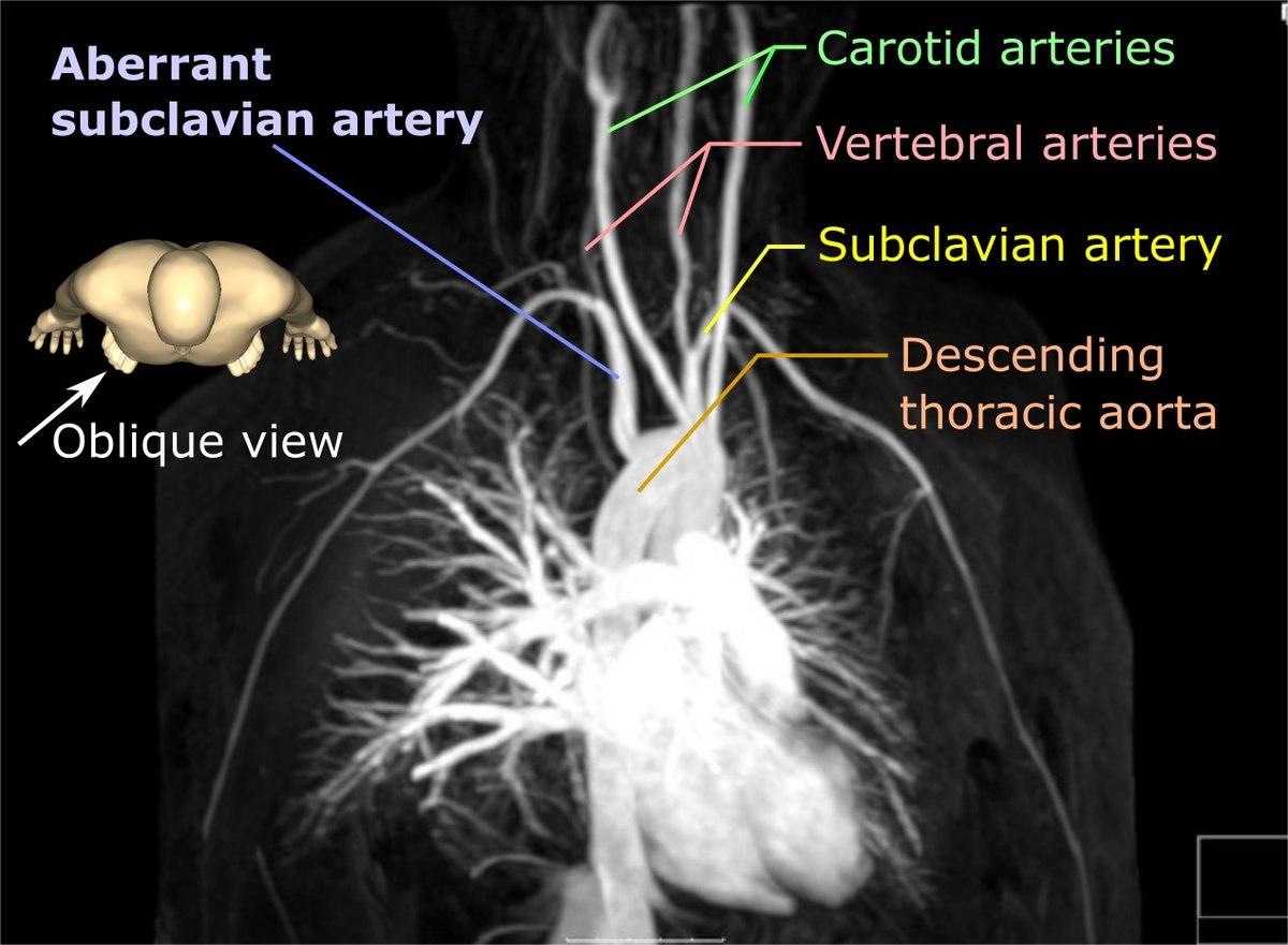 Aberrant Subclavian Artery Wikipedia