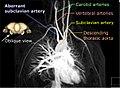 Arteria lusoria MRA MIP-03 - Annotated.jpg