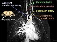 Magnetic Resonance Angiography Wikipedia