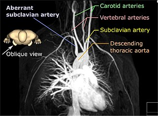 Aberrant subclavian artery Medical condition