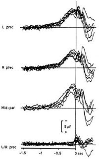 """Typical recording of the readiness potential. Libet investigated whether this neural activity corresponded to the """"felt intention"""" (or will) to move of experimental subjects."""