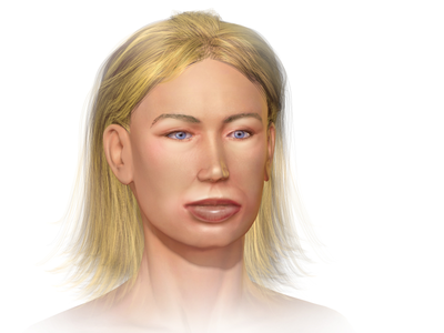 Blausen 0023 Angioedema.png
