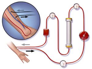 Vascular access - Illustration depicting AV fistula during hemodialysis