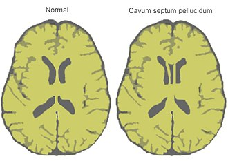 Cave of septum pellucidum - Stylized horizontal section through the brain showing normal and cave of septum pellucidum.