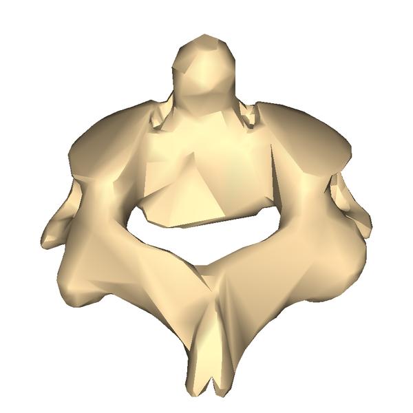 File:Cervical vertebra 2 close-up back2.png