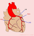Coronary anatomy (CardioNetworks ECGpedia).png